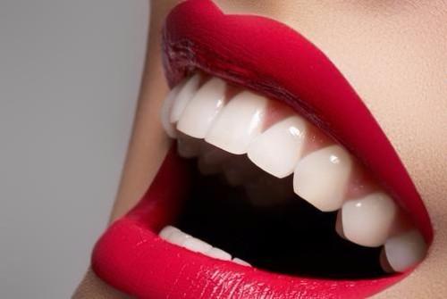 Teeth Whitening Information